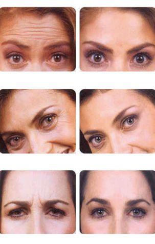 antes y despues del botox en medellin